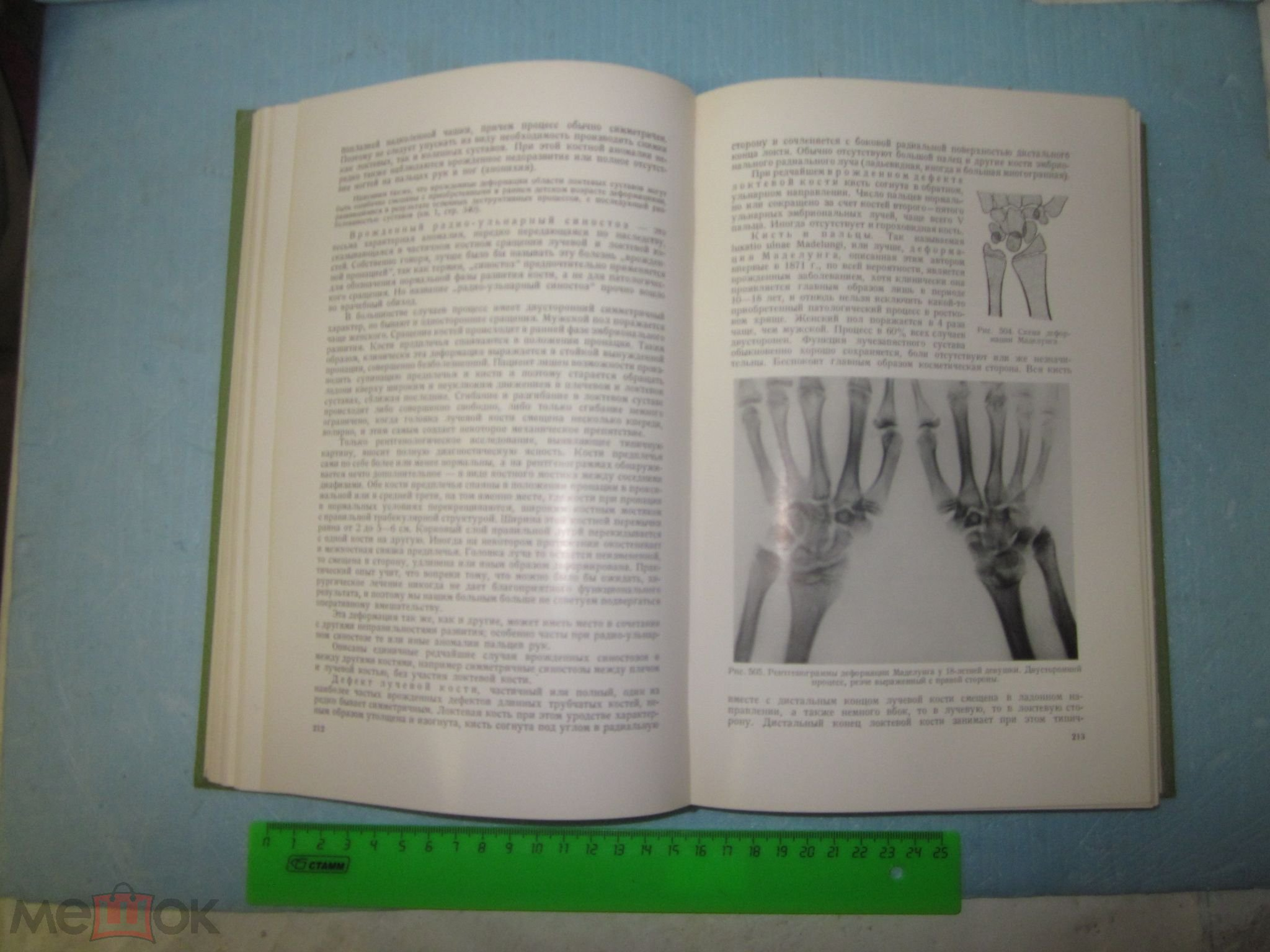 11.рейнберг, с.а.рентгенодиагностика заболеваний костей и суставов мрт плечевого сустава киев где дешевле
